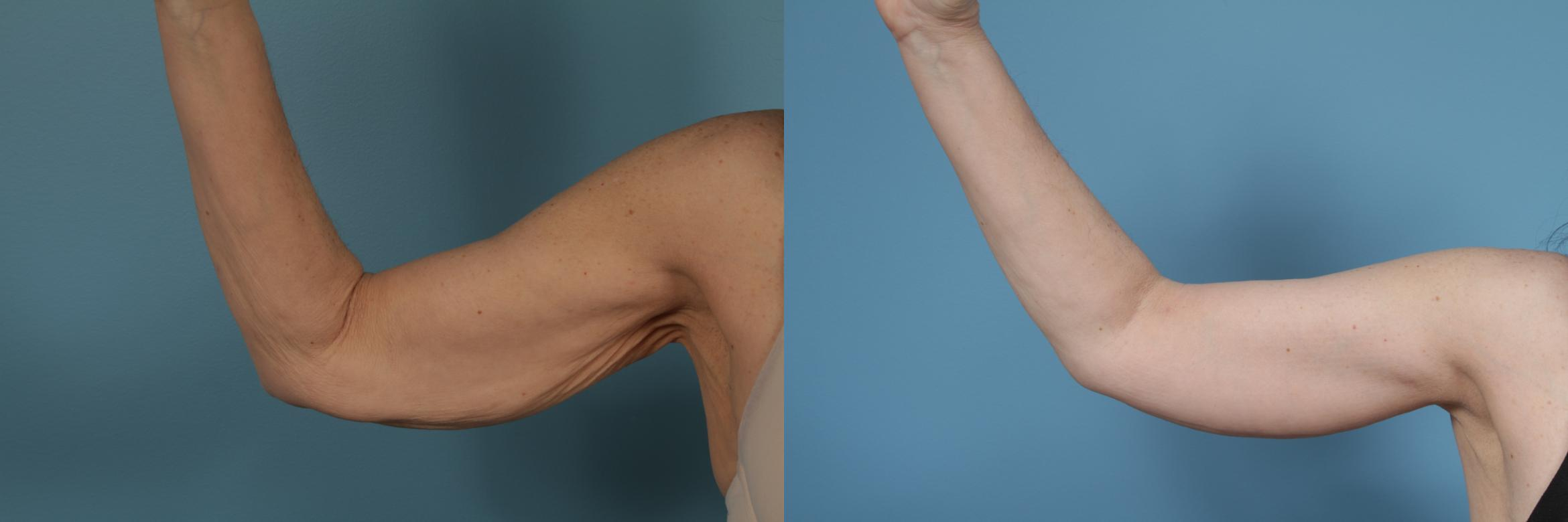Arm Lift (Brachioplasty) Case 282 Before & After View #1 | Chicago, IL | TLKM Plastic Surgery