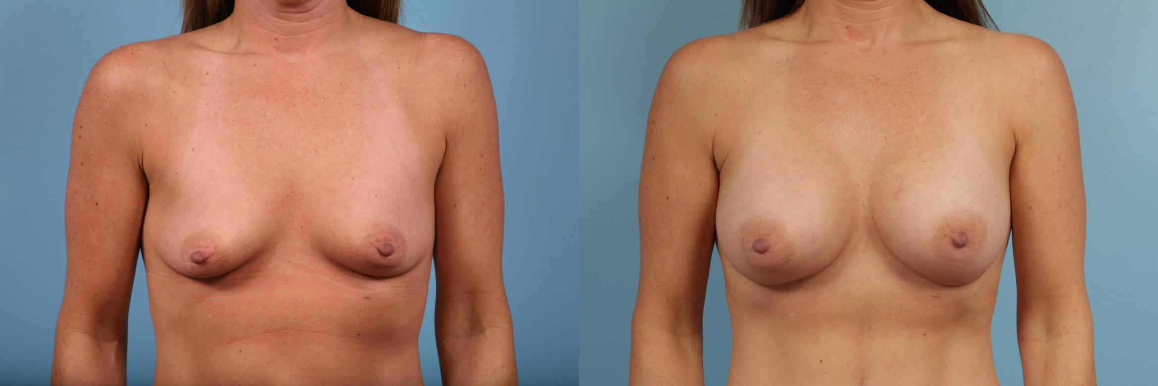 Breast Augmentation Case 102 Before & After View #1 | Chicago, IL | TLKM Plastic Surgery