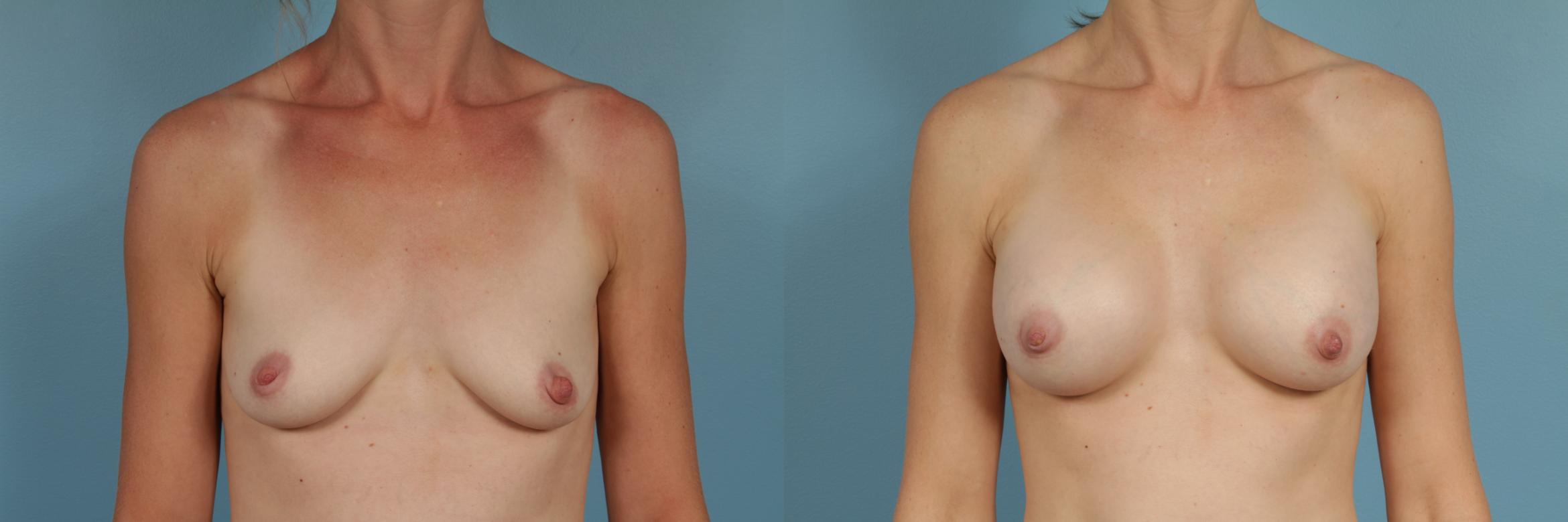 Breast Augmentation Case 262 Before & After View #1 | Chicago, IL | TLKM Plastic Surgery
