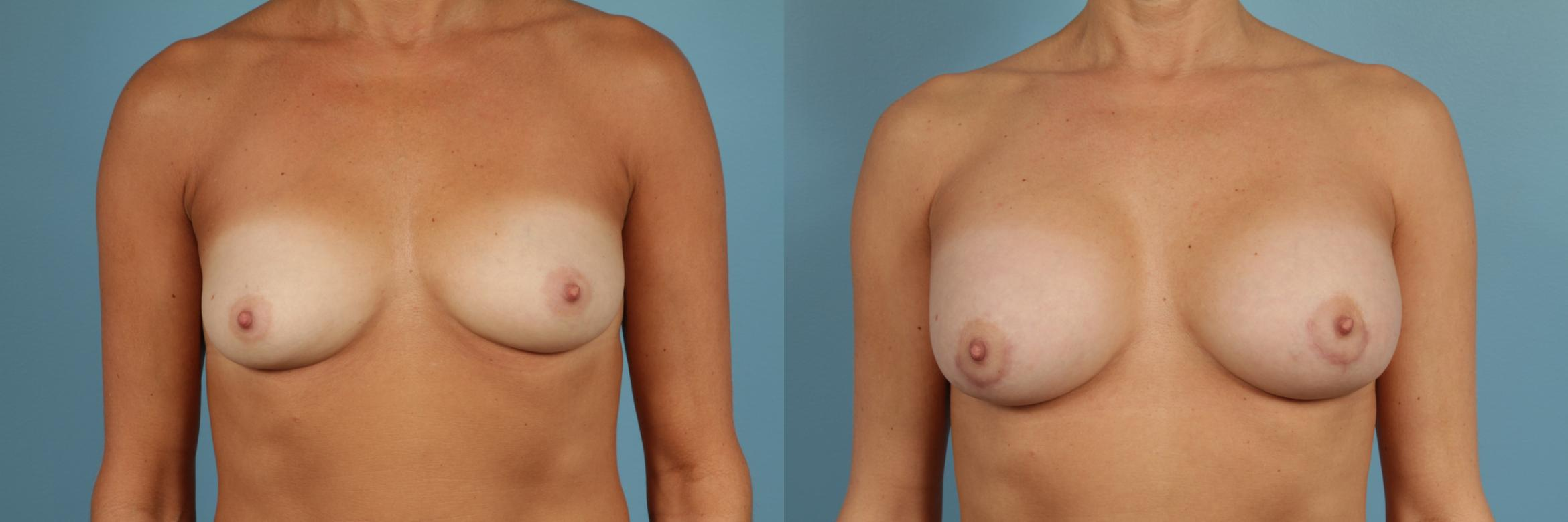 Breast Augmentation Case 263 Before & After View #1 | Chicago, IL | TLKM Plastic Surgery