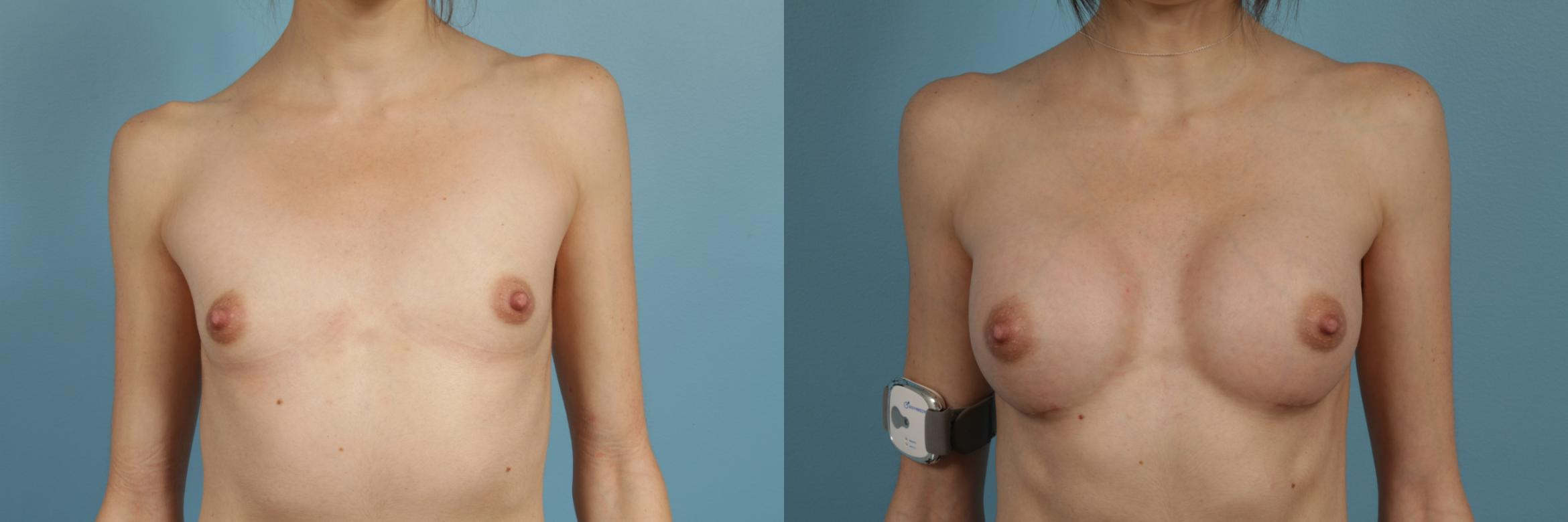 Breast Augmentation Case 270 Before & After View #1 | Chicago, IL | TLKM Plastic Surgery
