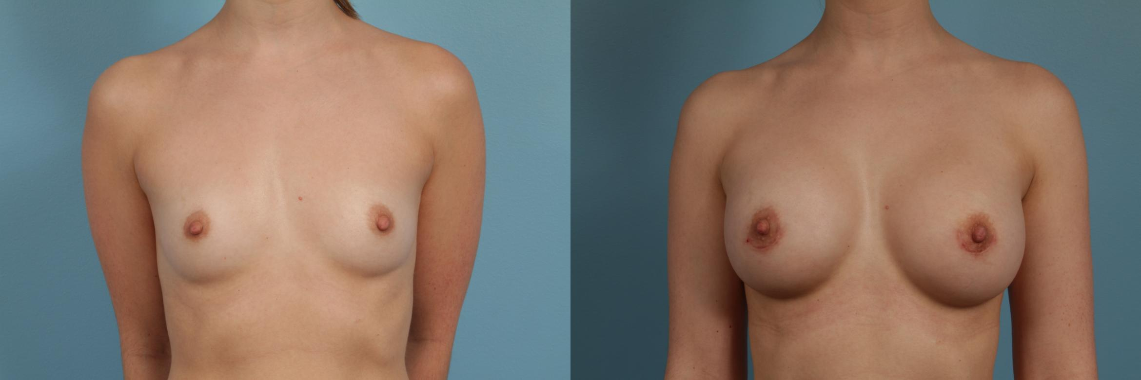 Breast Augmentation Case 273 Before & After View #1 | Chicago, IL | TLKM Plastic Surgery