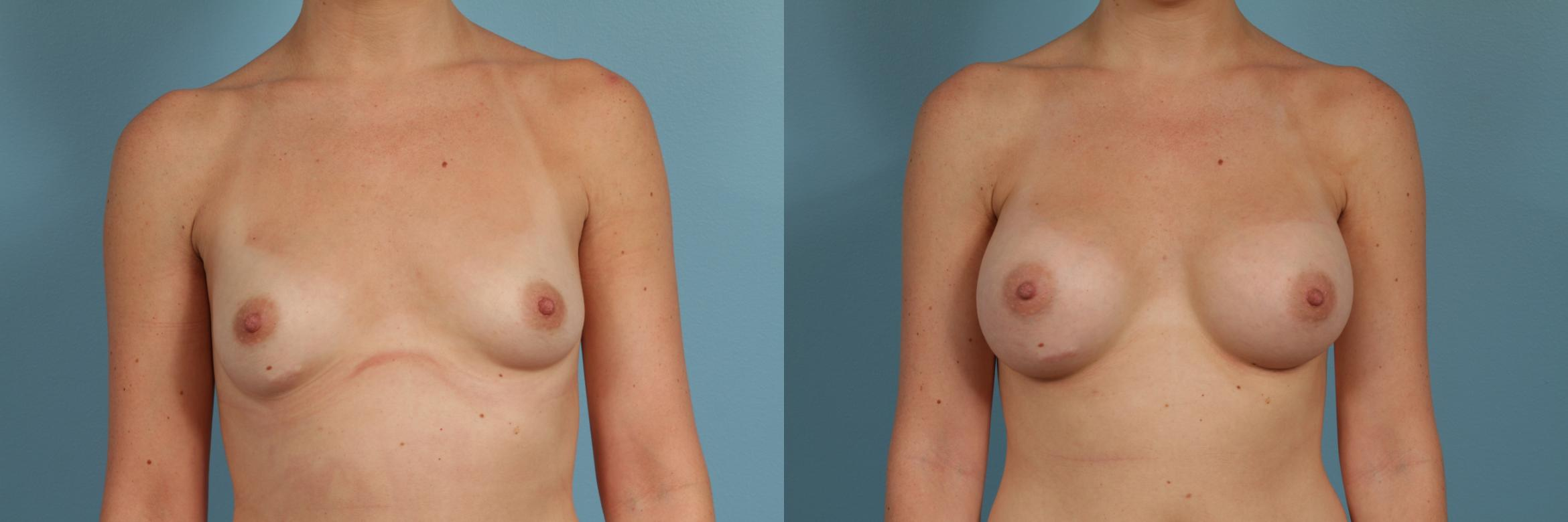 Breast Augmentation Case 300 Before & After View #1 | Chicago, IL | TLKM Plastic Surgery