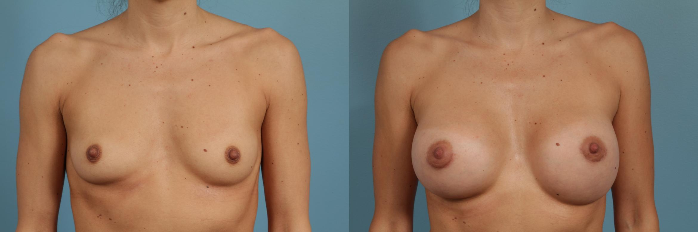 Breast Augmentation Case 301 Before & After View #1 | Chicago, IL | TLKM Plastic Surgery