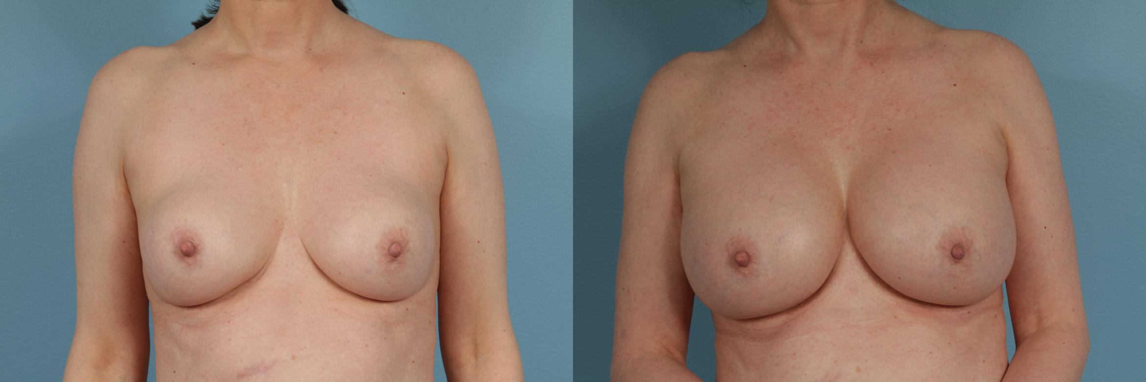 Breast Augmentation Case 305 Before & After View #1 | Chicago, IL | TLKM Plastic Surgery