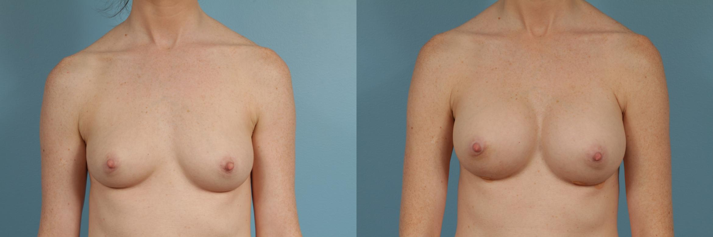 Breast Augmentation Case 320 Before & After View #1 | Chicago, IL | TLKM Plastic Surgery