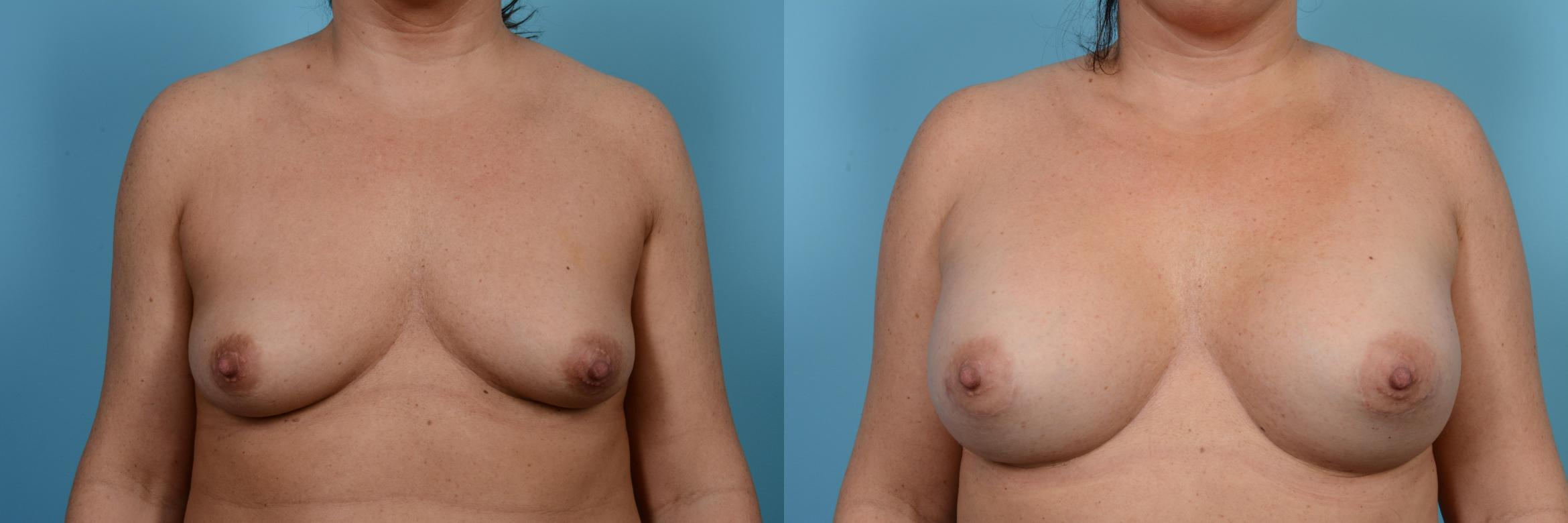 Breast Augmentation Case 474 Before & After View #1 | Chicago, IL | TLKM Plastic Surgery