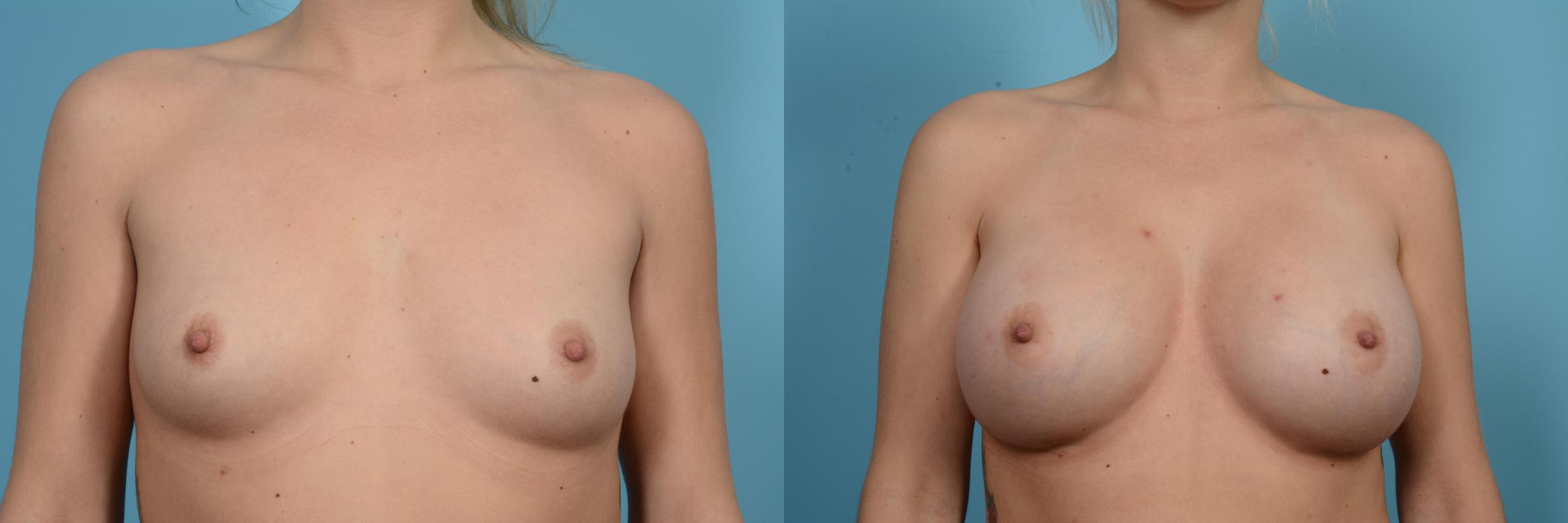 Breast Augmentation Case 589 Before & After View #1 | Chicago, IL | TLKM Plastic Surgery
