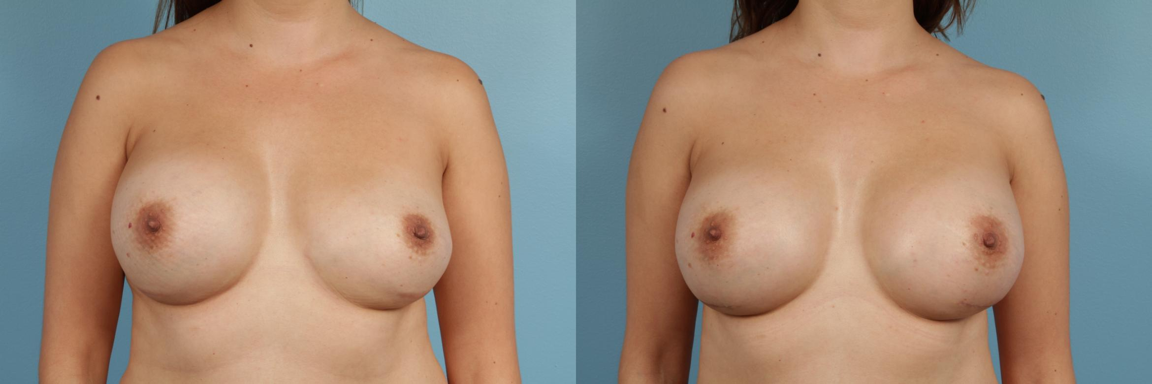 Breast Implant Replacement Case 163 Before & After View #1 | Chicago, IL | TLKM Plastic Surgery