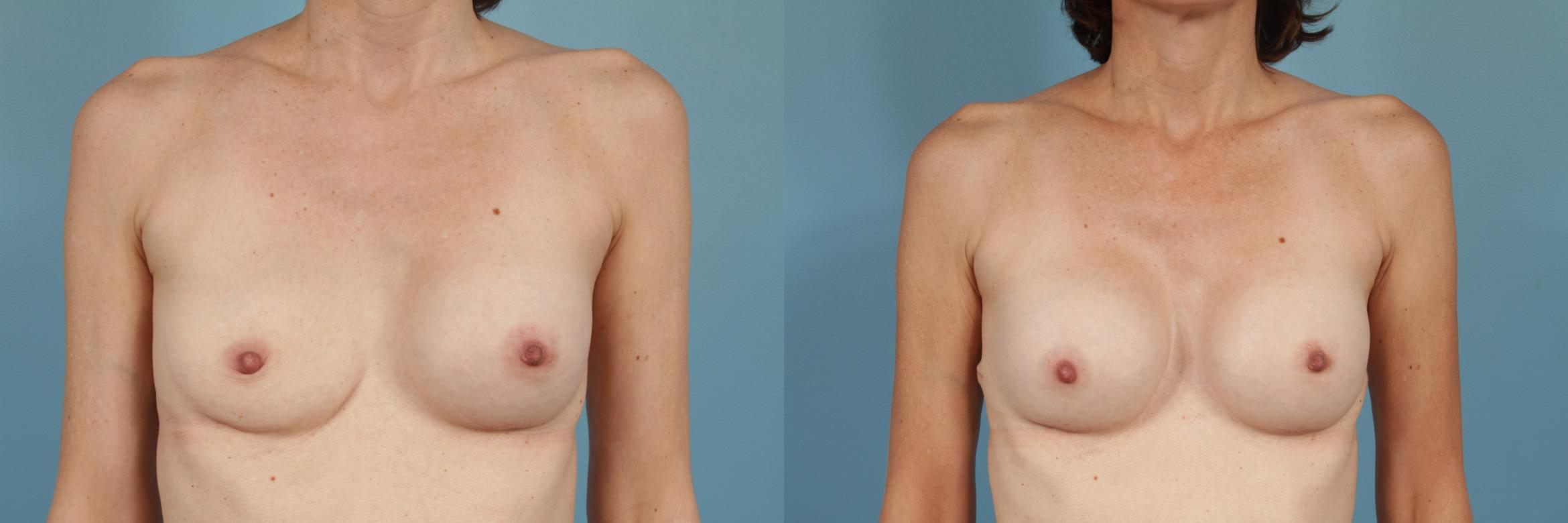 Breast Implant Replacement Case 193 Before & After View #1 | Chicago, IL | TLKM Plastic Surgery