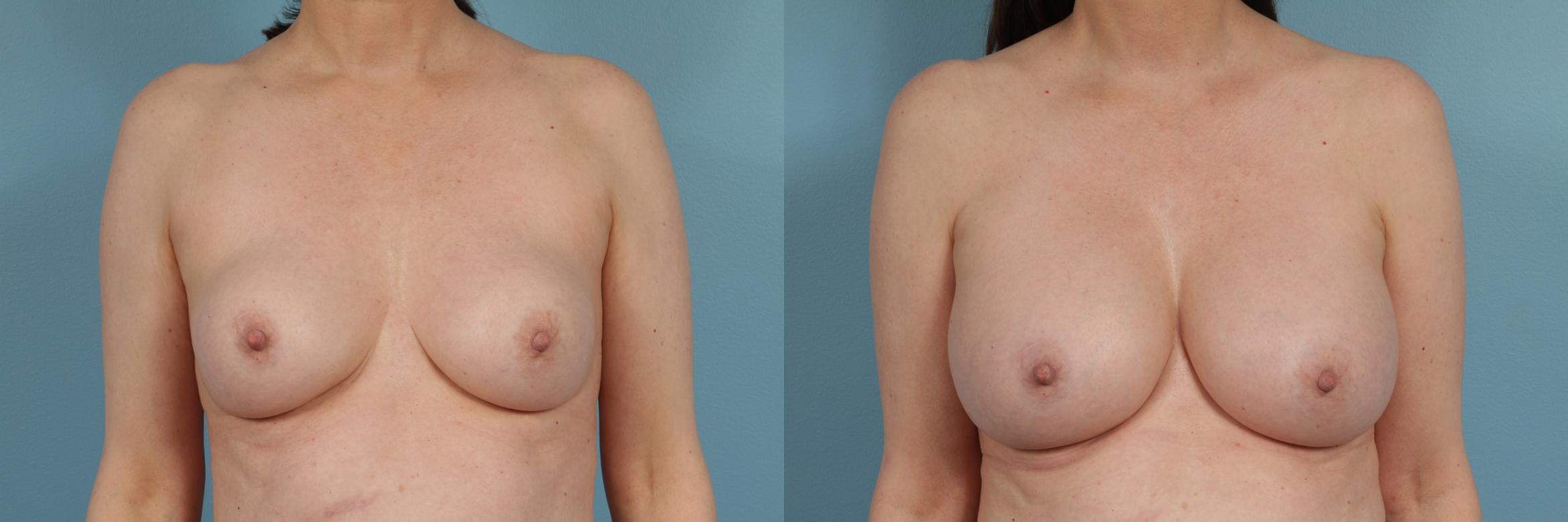 Breast Implant Replacement Case 235 Before & After View #1 | Chicago, IL | TLKM Plastic Surgery