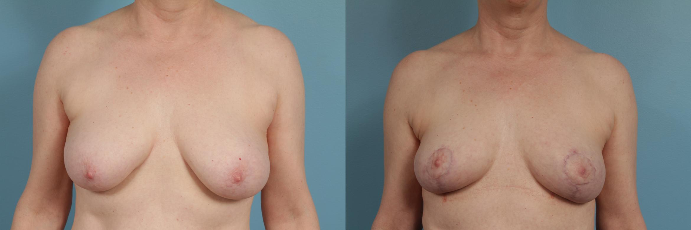 Breast Lift Case 313 Before & After View #1 | Chicago, IL | TLKM Plastic Surgery