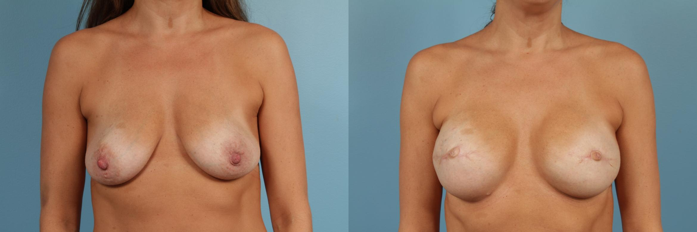 Breast Reconstruction Case 208 Before & After View #1 | Chicago, IL | TLKM Plastic Surgery