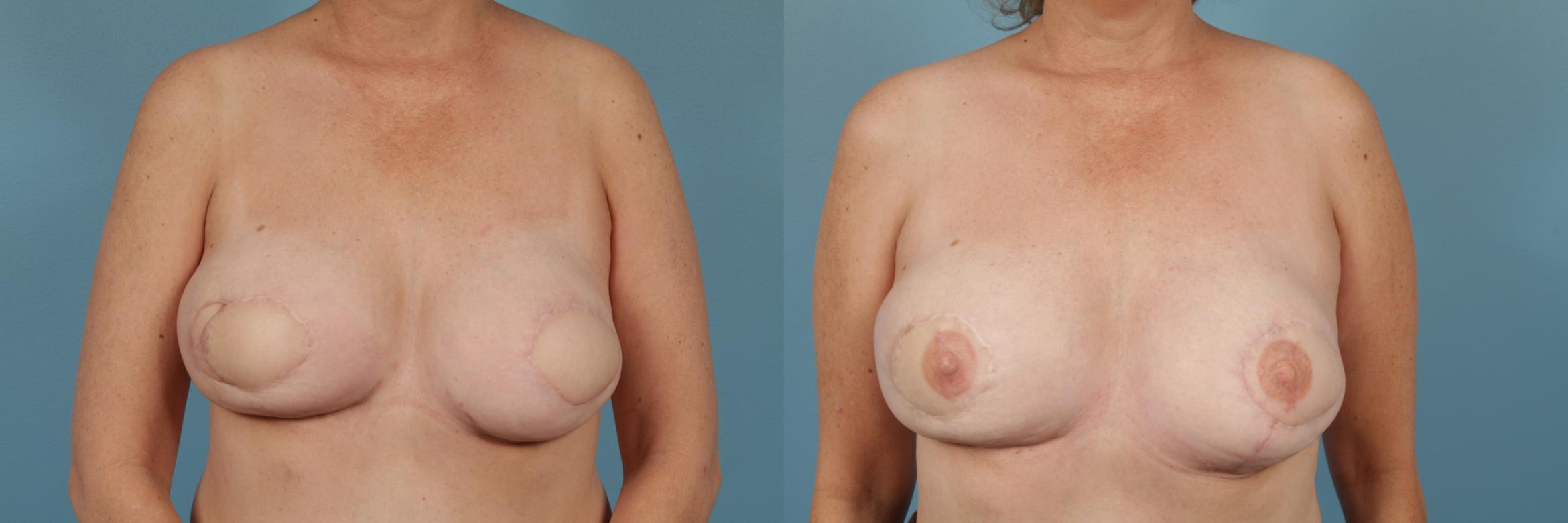 Breast Reconstruction Case 255 Before & After View #1 | Chicago, IL | TLKM Plastic Surgery