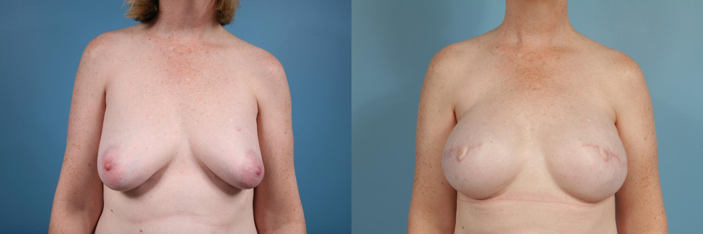 Breast Reconstruction Case 84 Before & After View #1 | Chicago, IL | TLKM Plastic Surgery