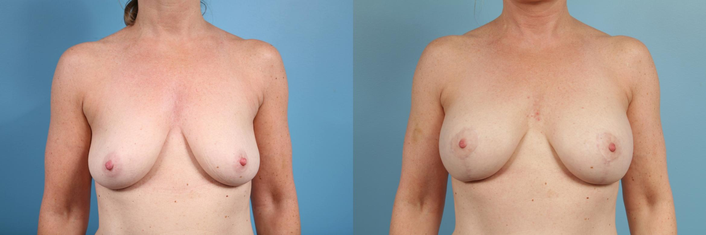 Breast Reduction Case 101 Before & After View #1 | Chicago, IL | TLKM Plastic Surgery