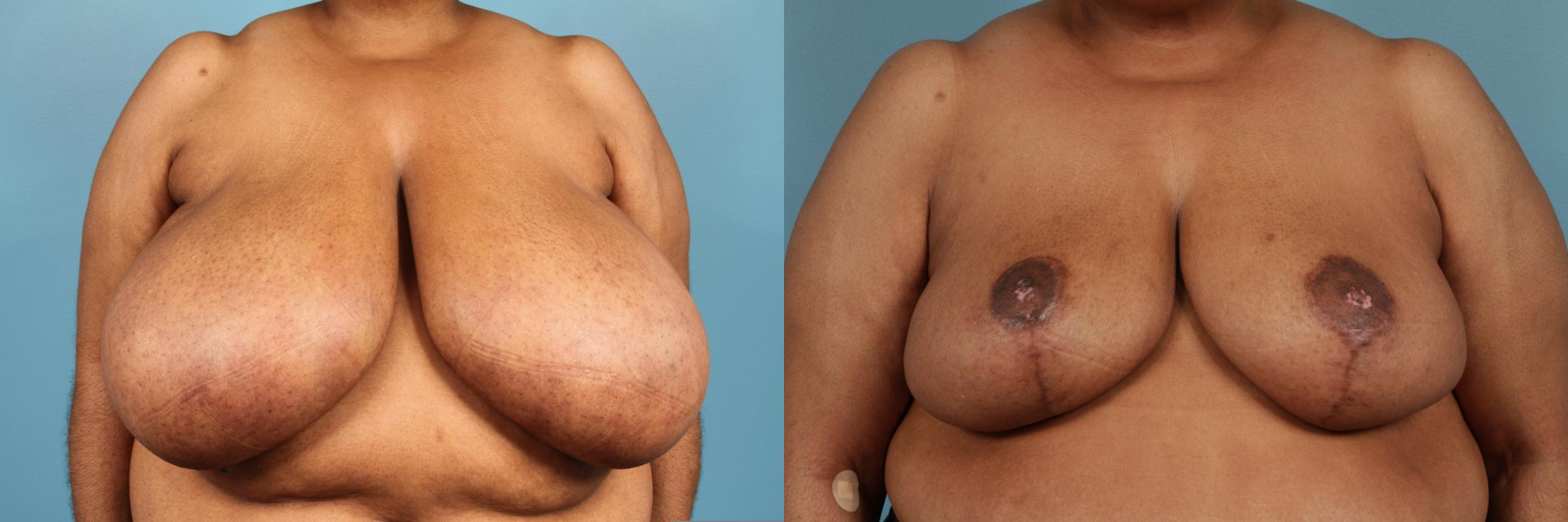 Breast Reduction Case 135 Before & After View #1 | Chicago, IL | TLKM Plastic Surgery