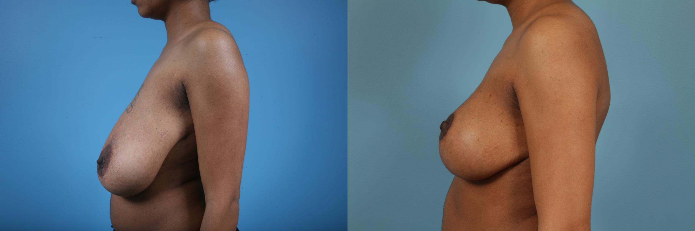 Breast Reduction Case 146 Before & After View #1 | Chicago, IL | TLKM Plastic Surgery