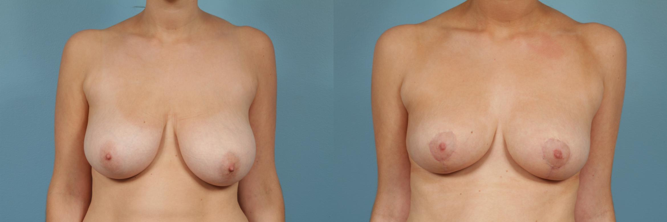 Breast Reduction Case 241 Before & After View #1 | Chicago, IL | TLKM Plastic Surgery