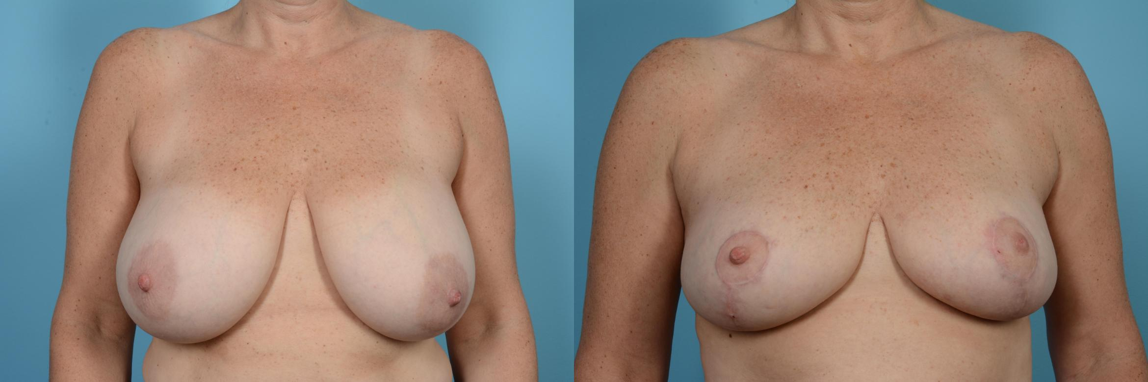 Breast Reduction Case 520 Before & After View #1 | Chicago, IL | TLKM Plastic Surgery