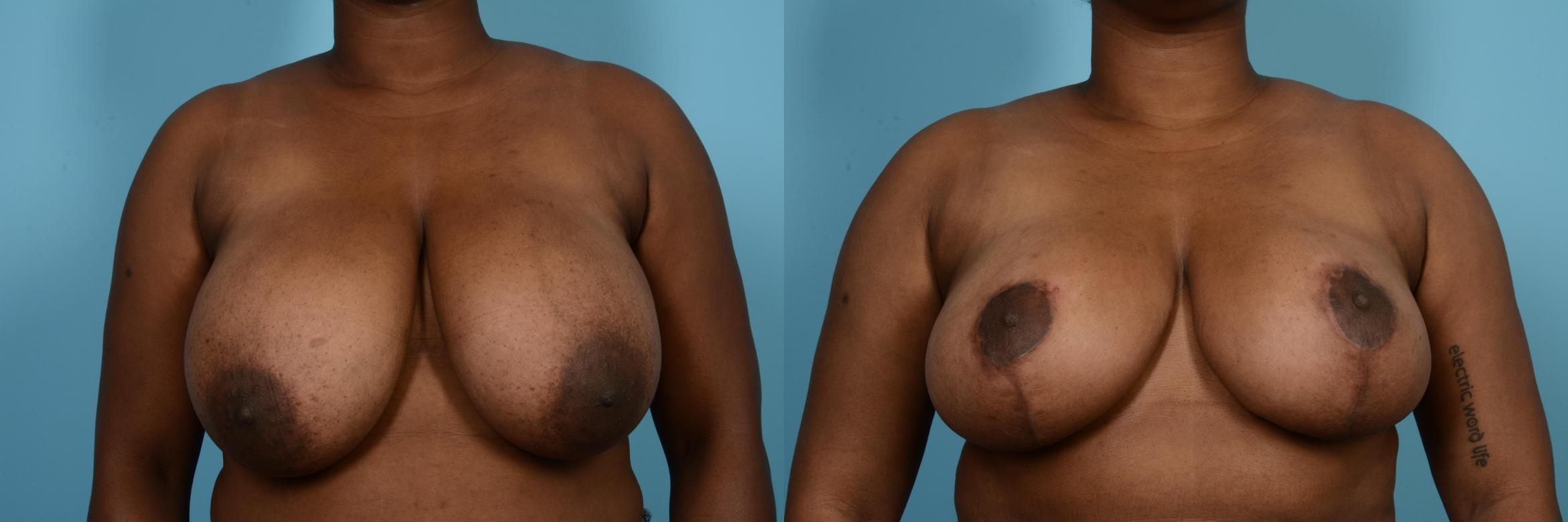 Breast Reduction Case 572 Before & After View #1 | Chicago, IL | TLKM Plastic Surgery
