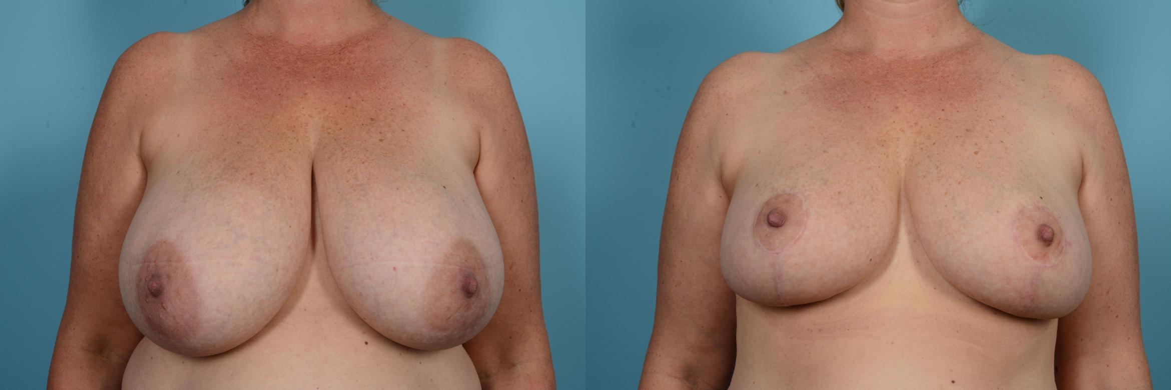 Breast Reduction Case 581 Before & After View #1 | Chicago, IL | TLKM Plastic Surgery