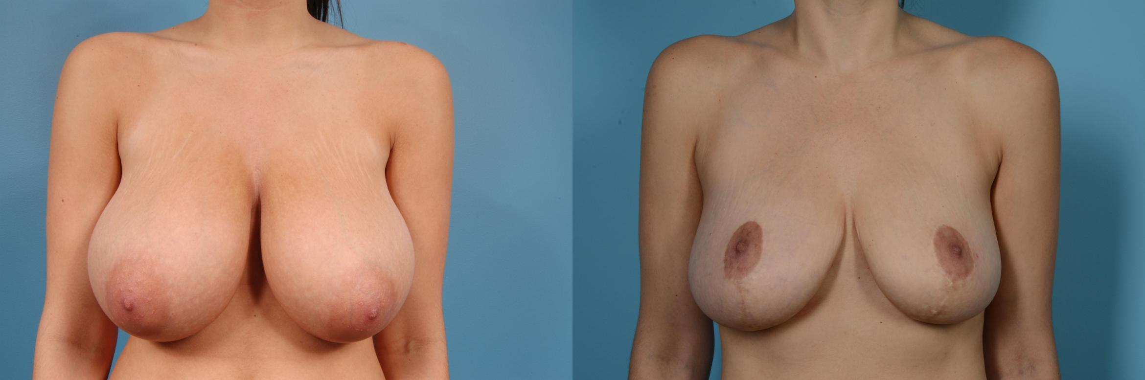Breast Reduction Case 82 Before & After View #1 | Chicago, IL | TLKM Plastic Surgery