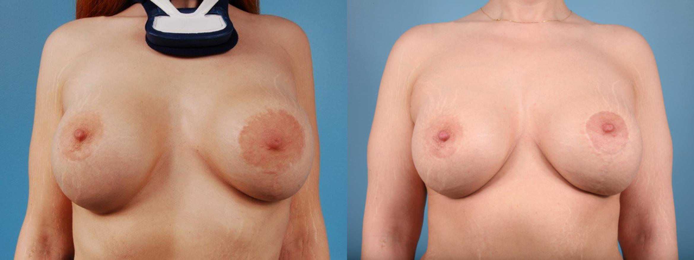 Breast Revision Surgery Case 2 Before & After View #1 | Chicago, IL | TLKM Plastic Surgery