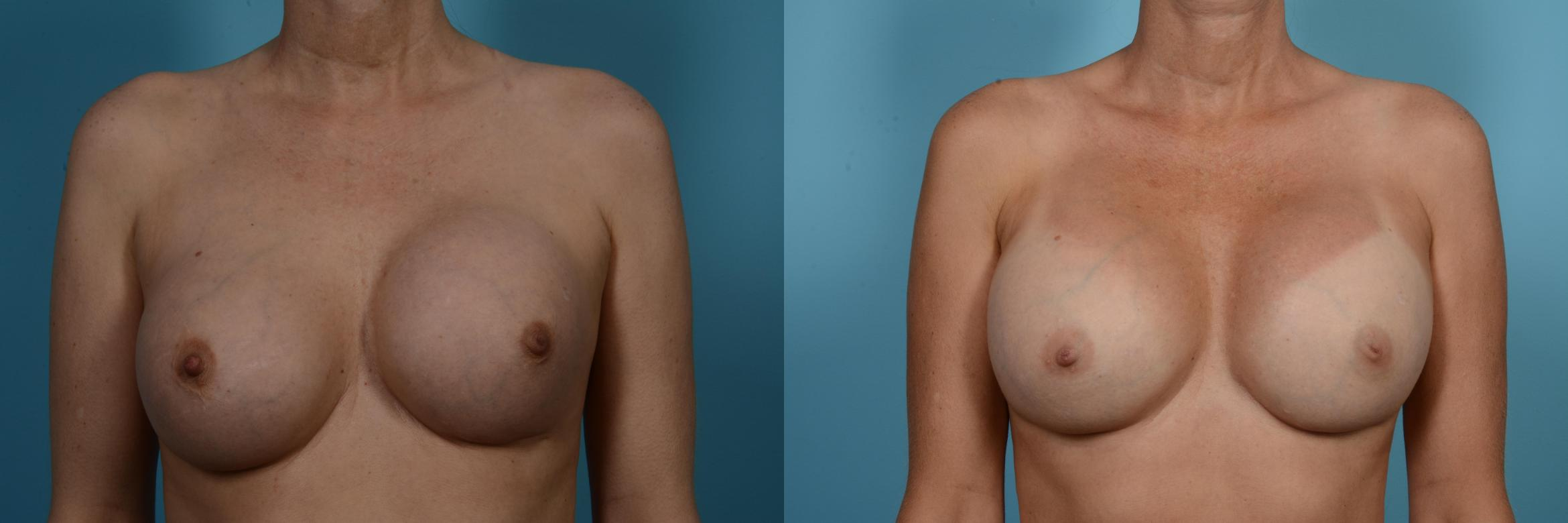 Breast Revision Surgery Case 556 Before & After View #1 | Chicago, IL | TLKM Plastic Surgery