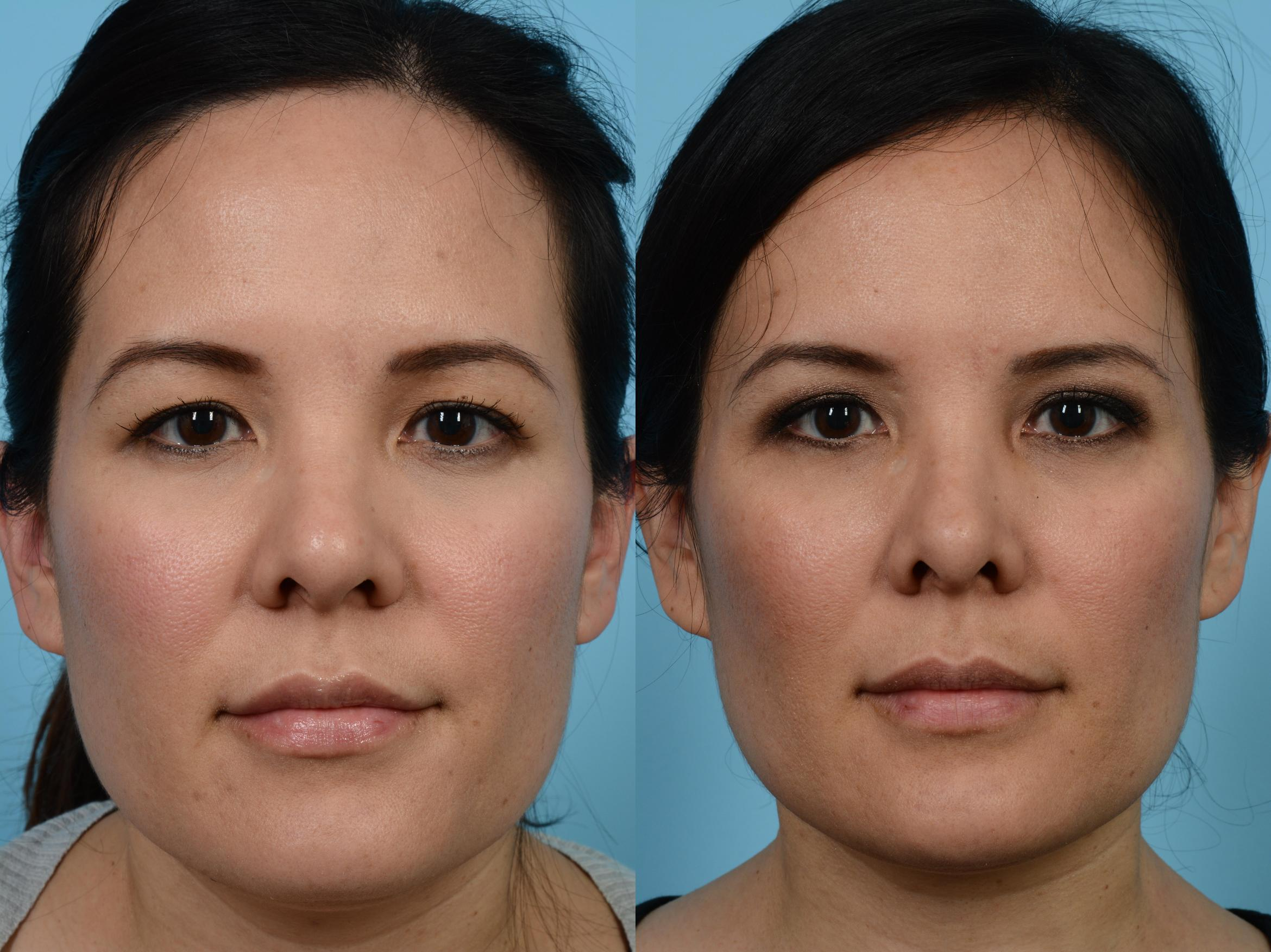 Brow Lift Before & After Photos Patient 488 | Chicago, IL ...