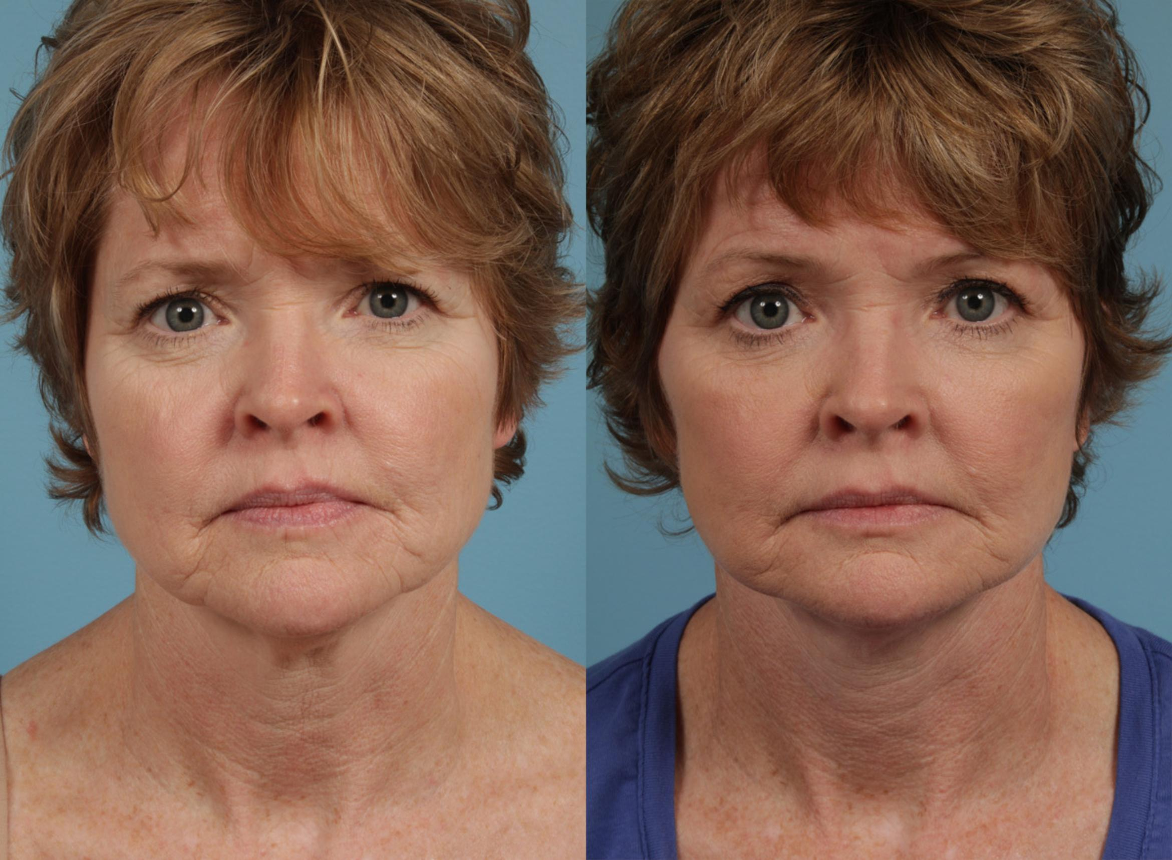 Eyelid Surgery Case 286 Before & After View #1 | Chicago, IL | TLKM Plastic Surgery