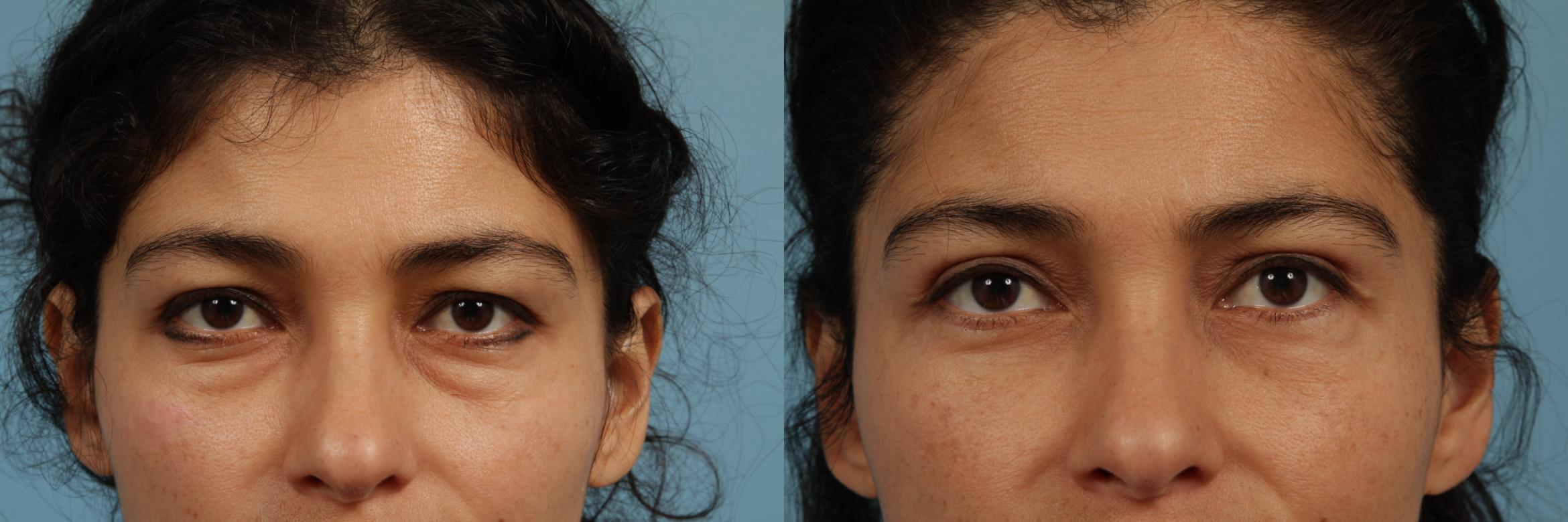 Eyelid Surgery Case 319 Before & After View #1 | Chicago, IL | TLKM Plastic Surgery