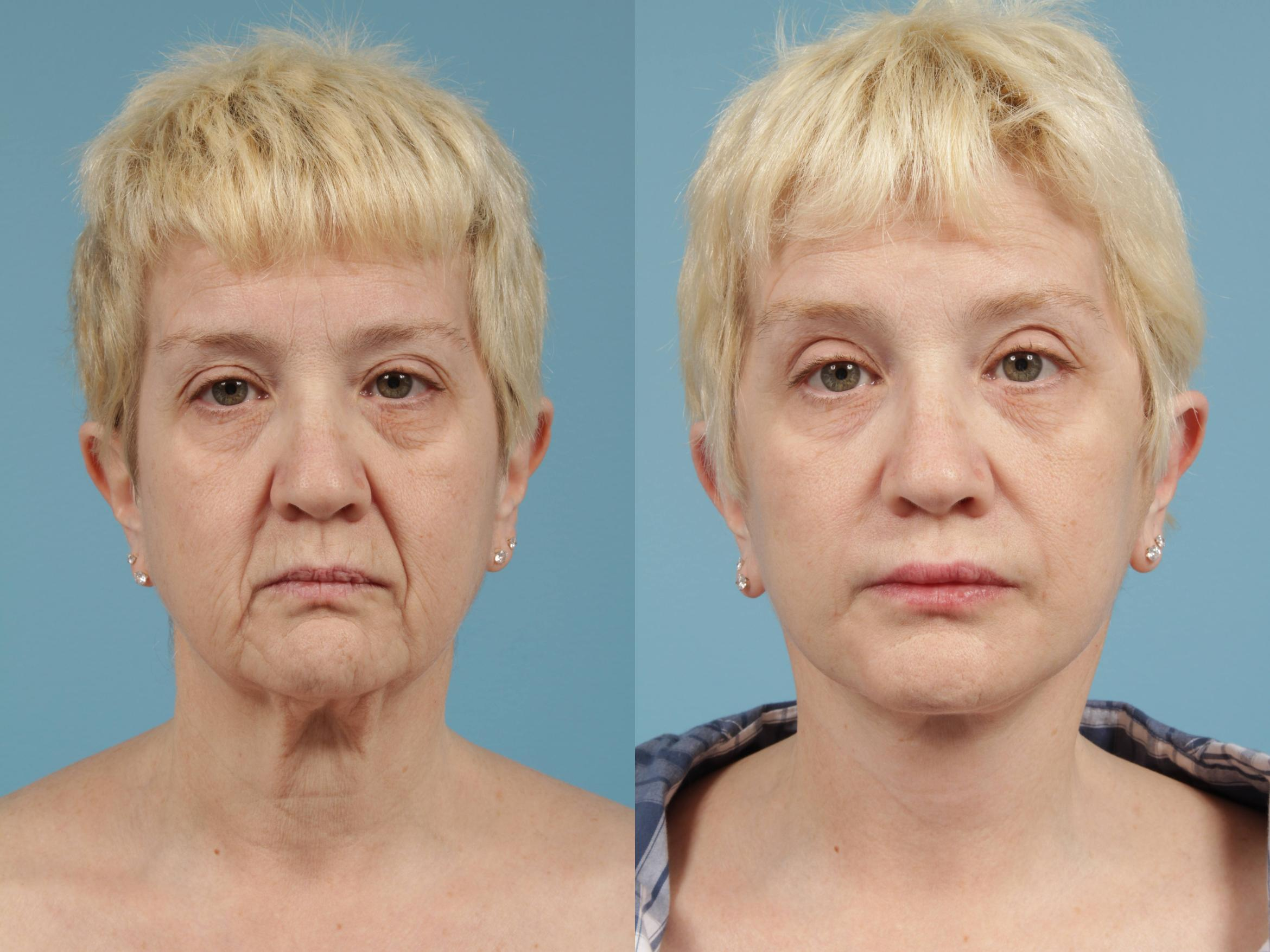 Facelift/Minilift Case 170 Before & After View #1 | Chicago, IL | TLKM Plastic Surgery