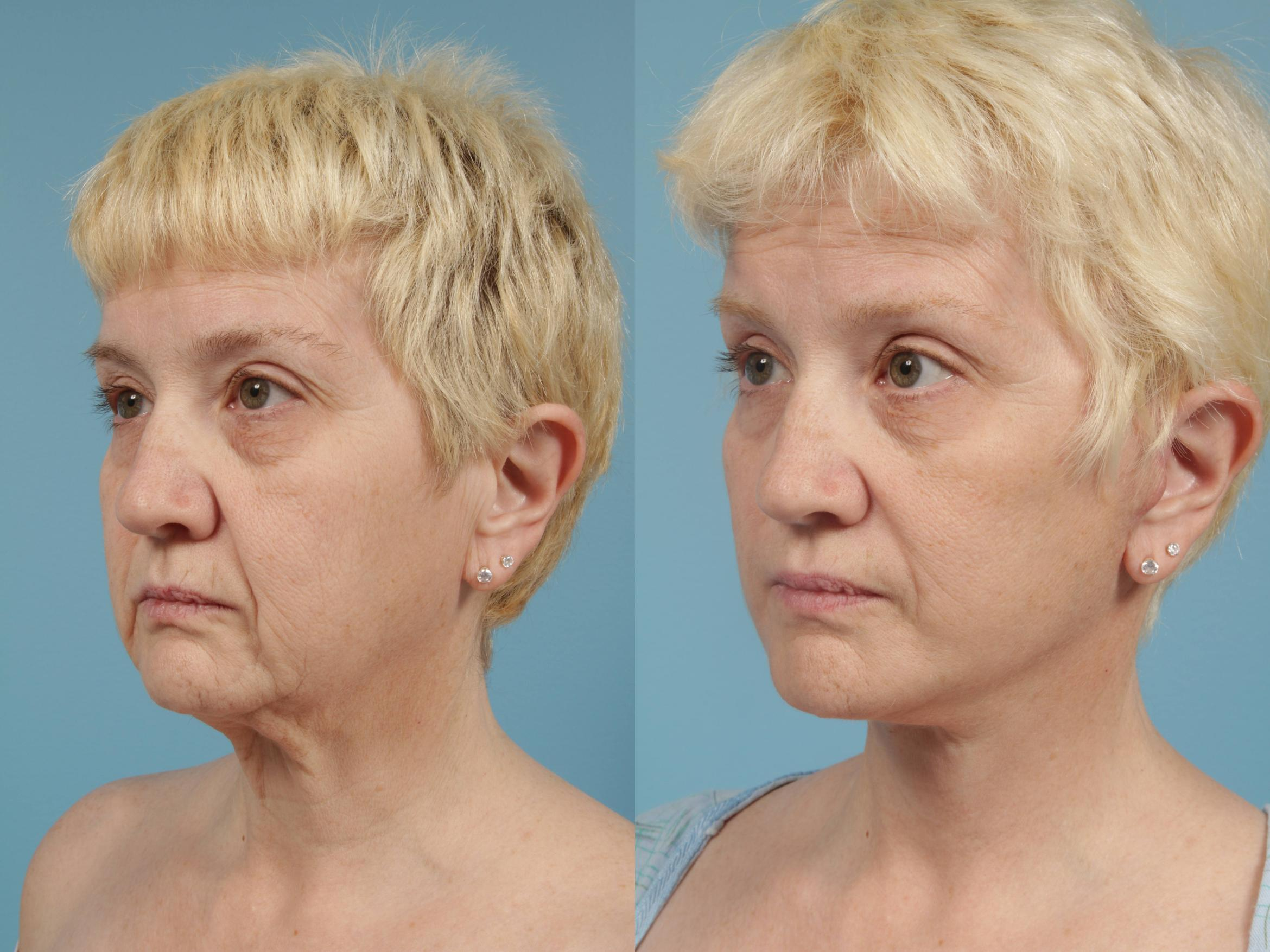 Facelift/Minilift Case 170 Before & After View #2 | Chicago, IL | TLKM Plastic Surgery