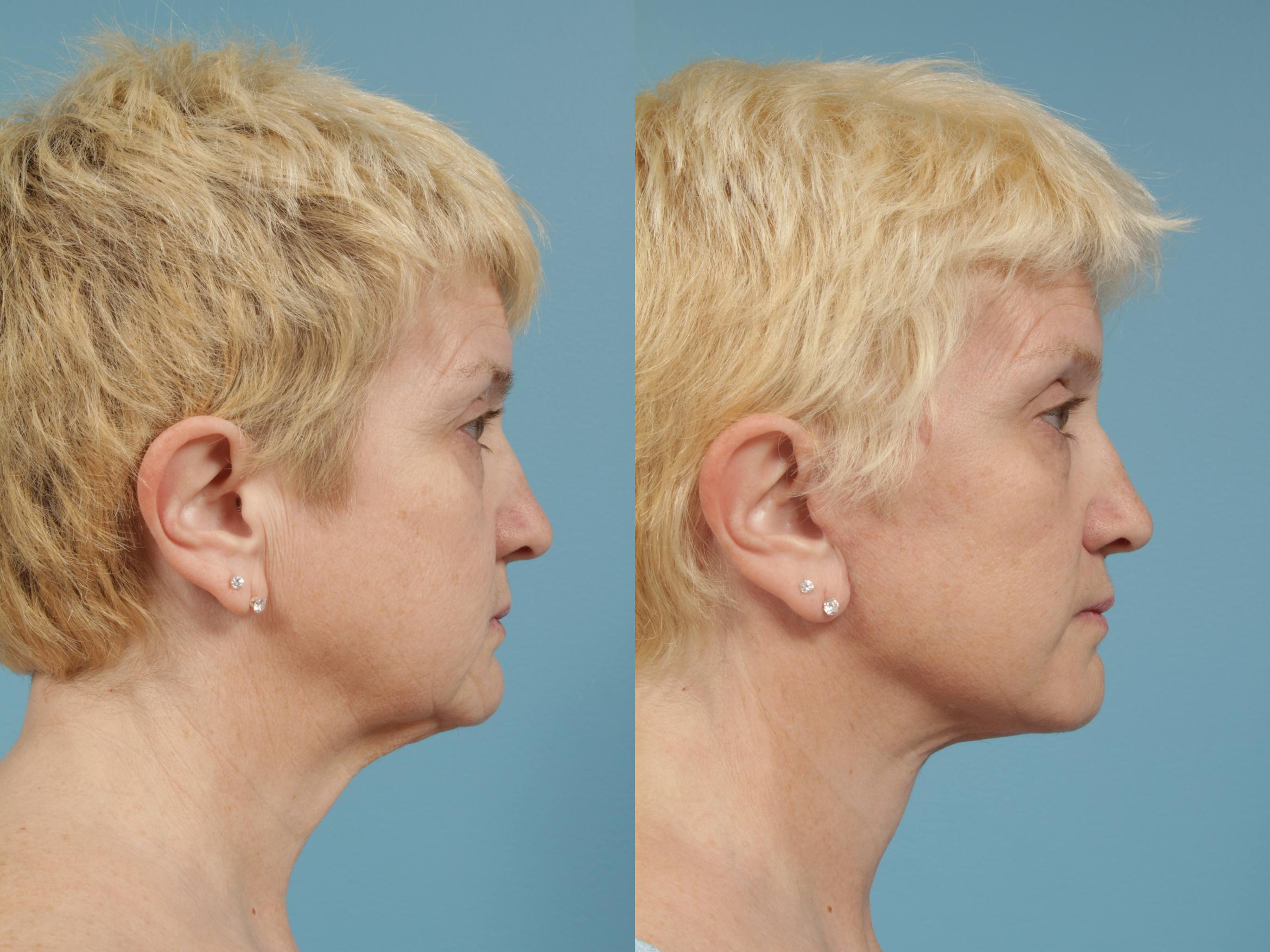 Facelift/Minilift Case 170 Before & After View #3 | Chicago, IL | TLKM Plastic Surgery