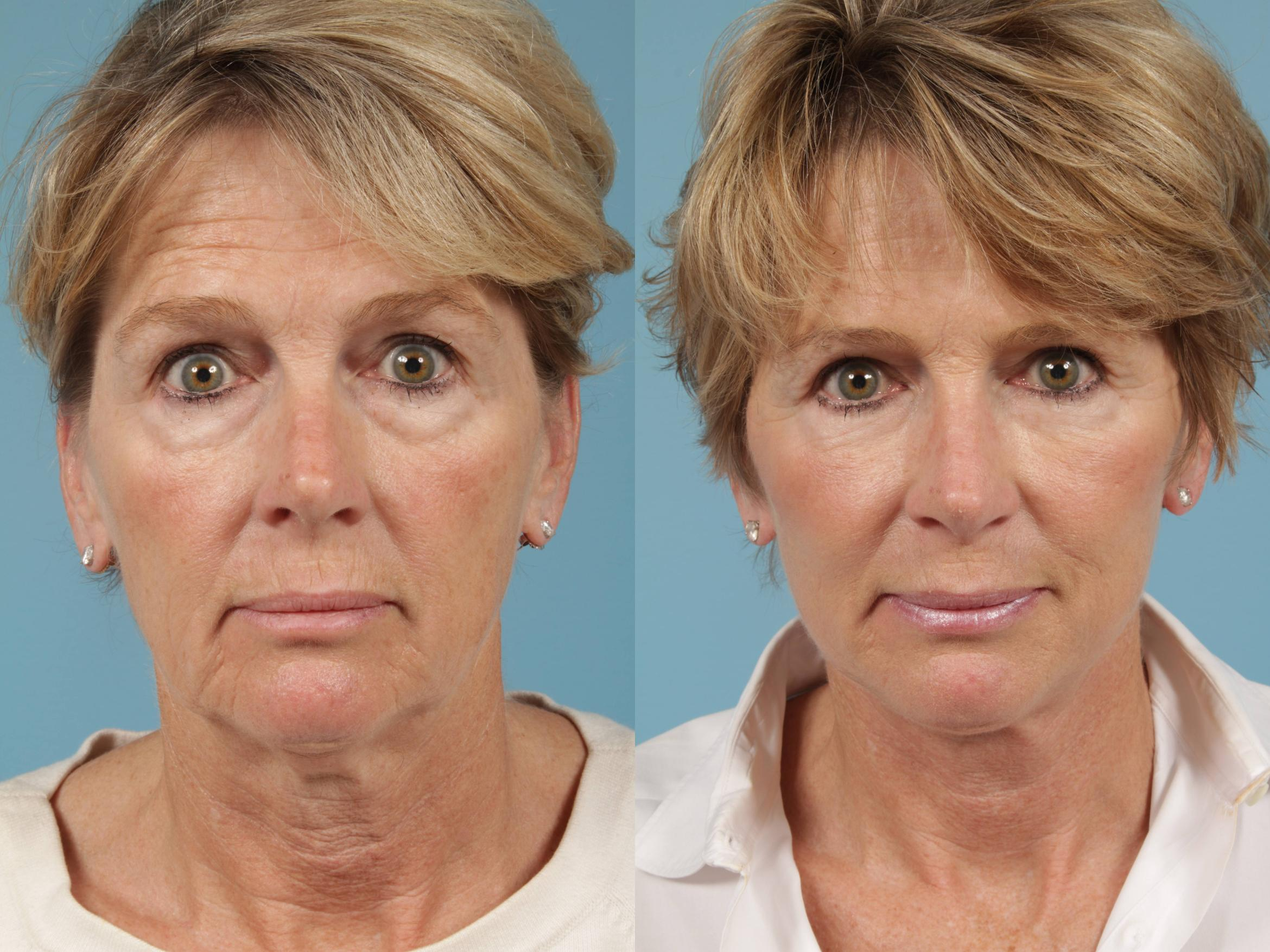 Facelift/Minilift Case 216 Before & After View #1 | Chicago, IL | TLKM Plastic Surgery