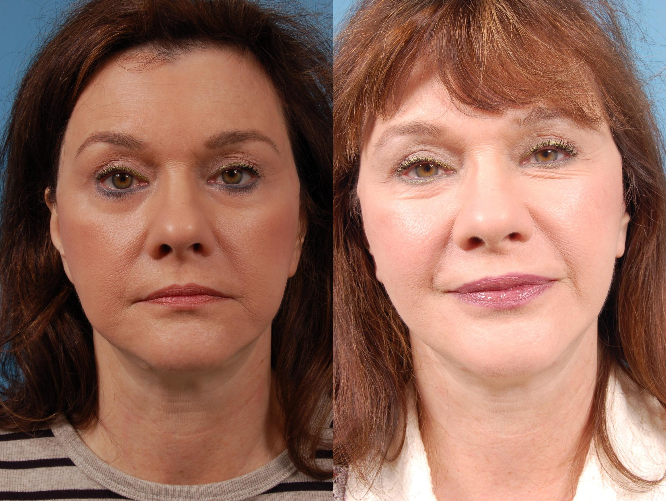 Facelift/Minilift Case 225 Before & After View #1 | Chicago, IL | TLKM Plastic Surgery