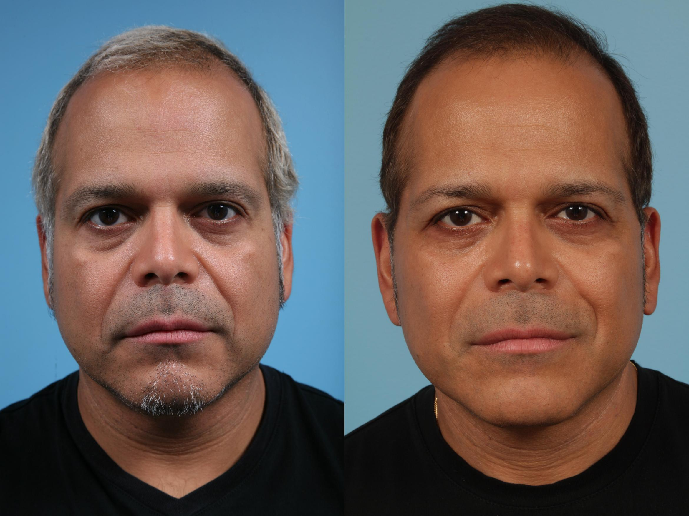Facelift/Minilift Case 229 Before & After View #1 | Chicago, IL | TLKM Plastic Surgery