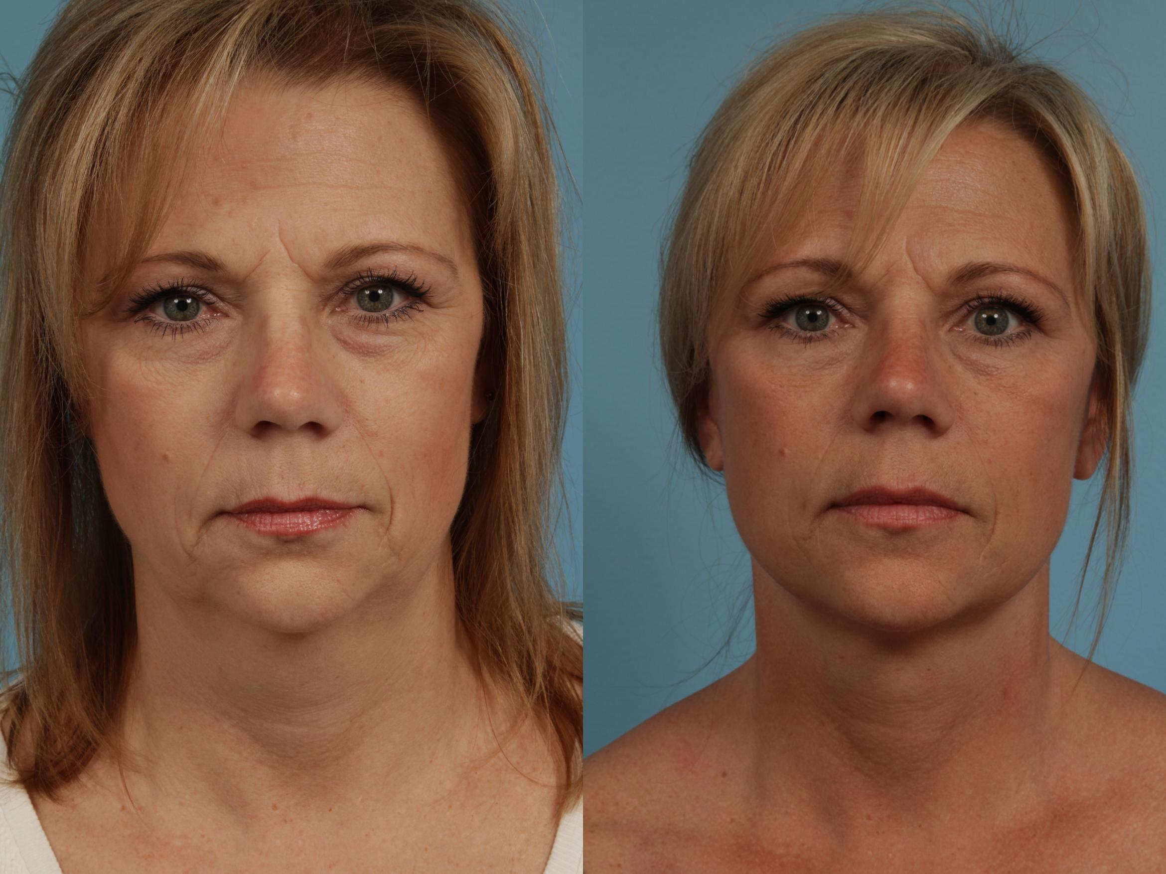 Facelift/Minilift Case 274 Before & After View #2 | Chicago, IL | TLKM Plastic Surgery