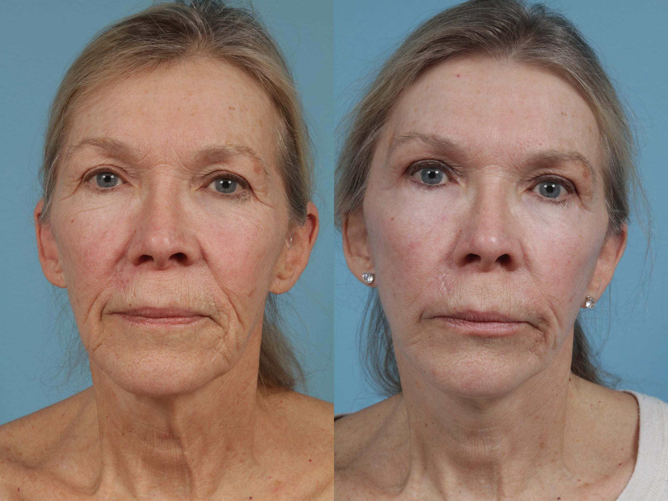 Facelift/Minilift Case 340 Before & After View #1 | Chicago, IL | TLKM Plastic Surgery