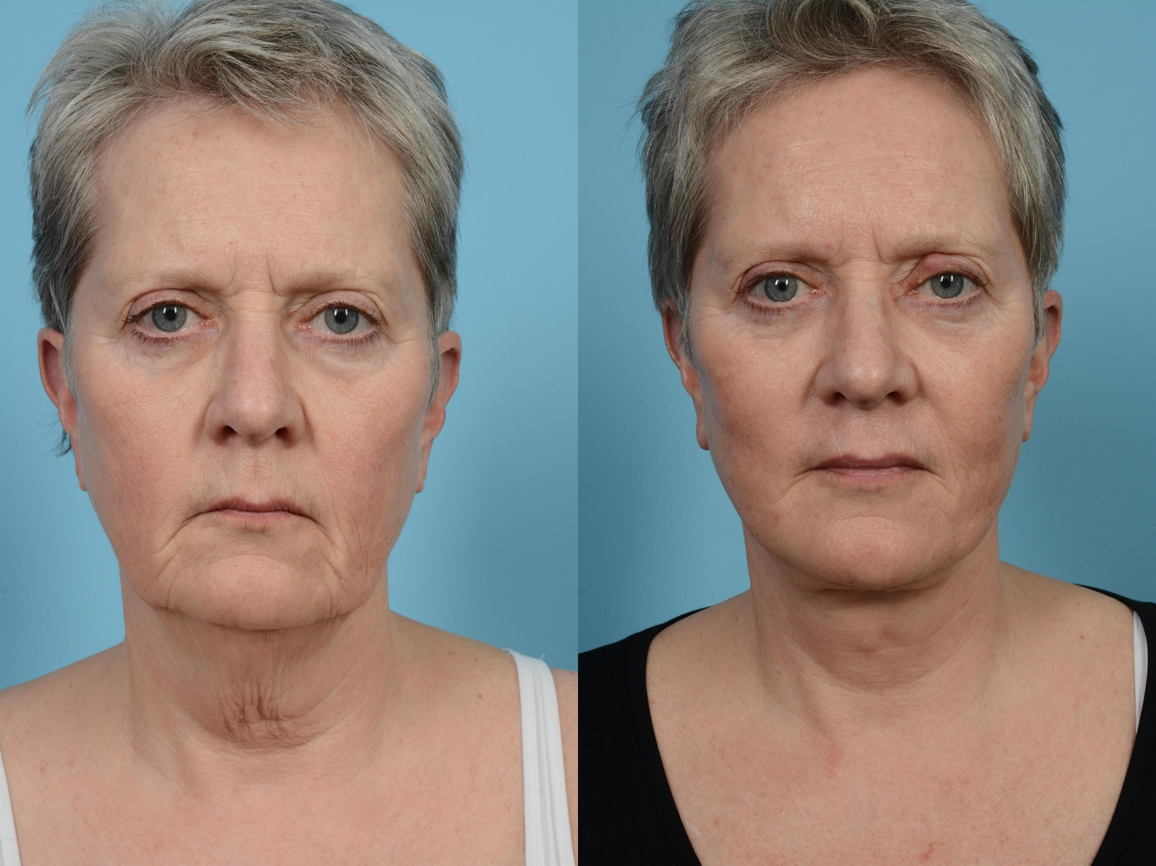 Facelift/Minilift Case 573 Before & After View #1 | Chicago, IL | TLKM Plastic Surgery