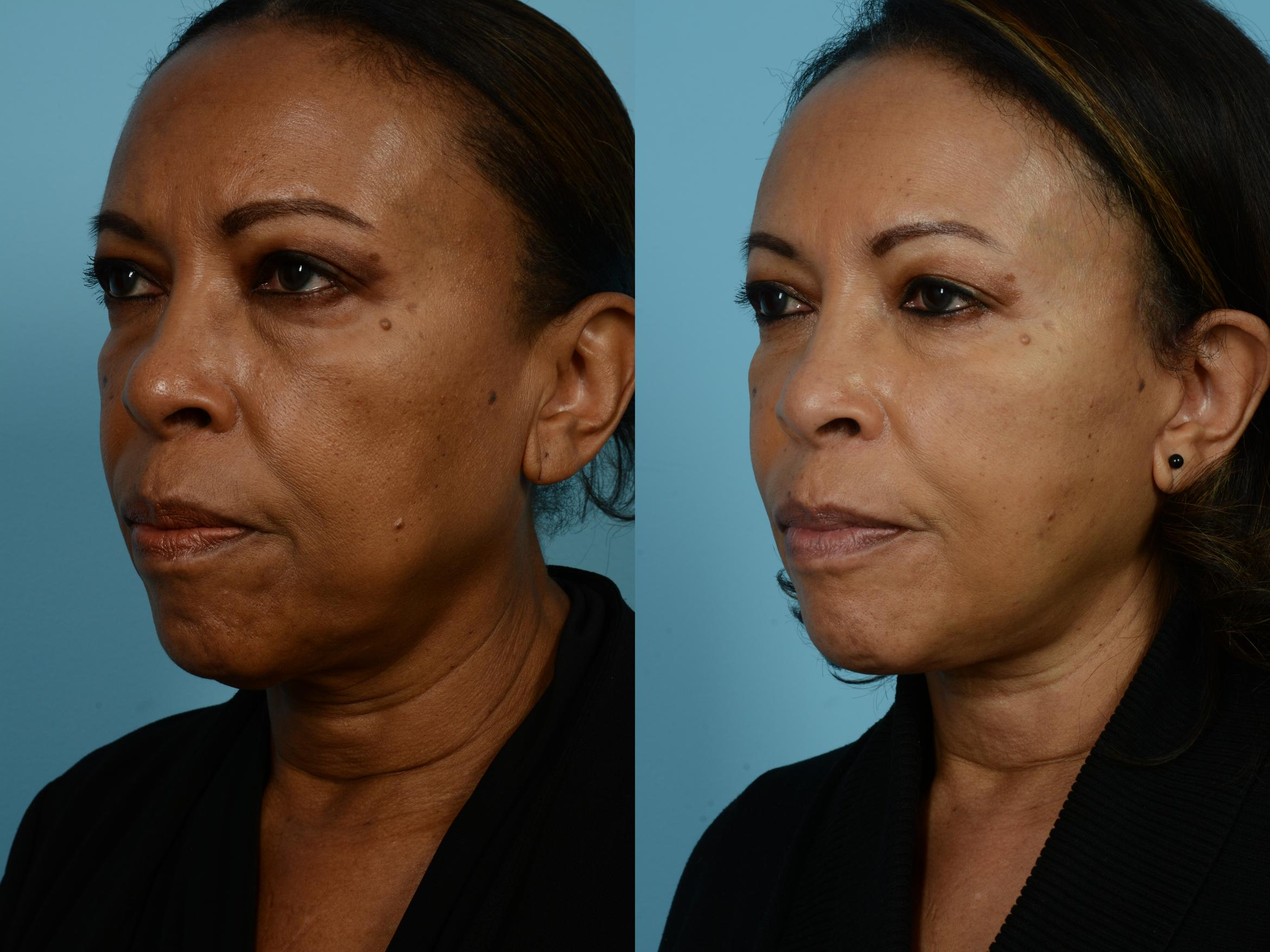 Dr. Sinno Facelift in Chicago, Illinois