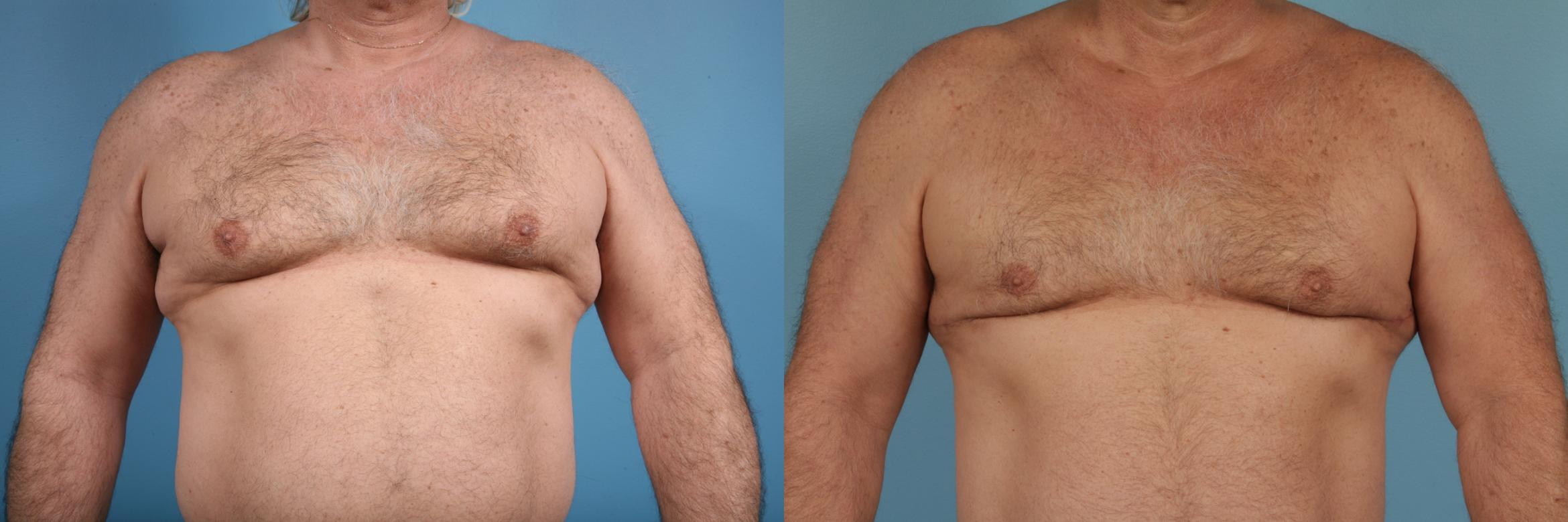Male Breast Reduction (Gynecomastia) Case 174 Before & After View #1 | Chicago, IL | TLKM Plastic Surgery
