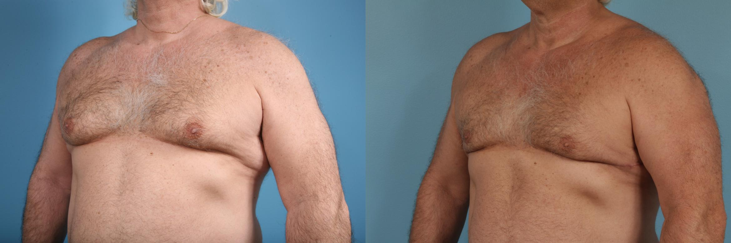 Male Breast Reduction (Gynecomastia) Case 174 Before & After View #2 | Chicago, IL | TLKM Plastic Surgery