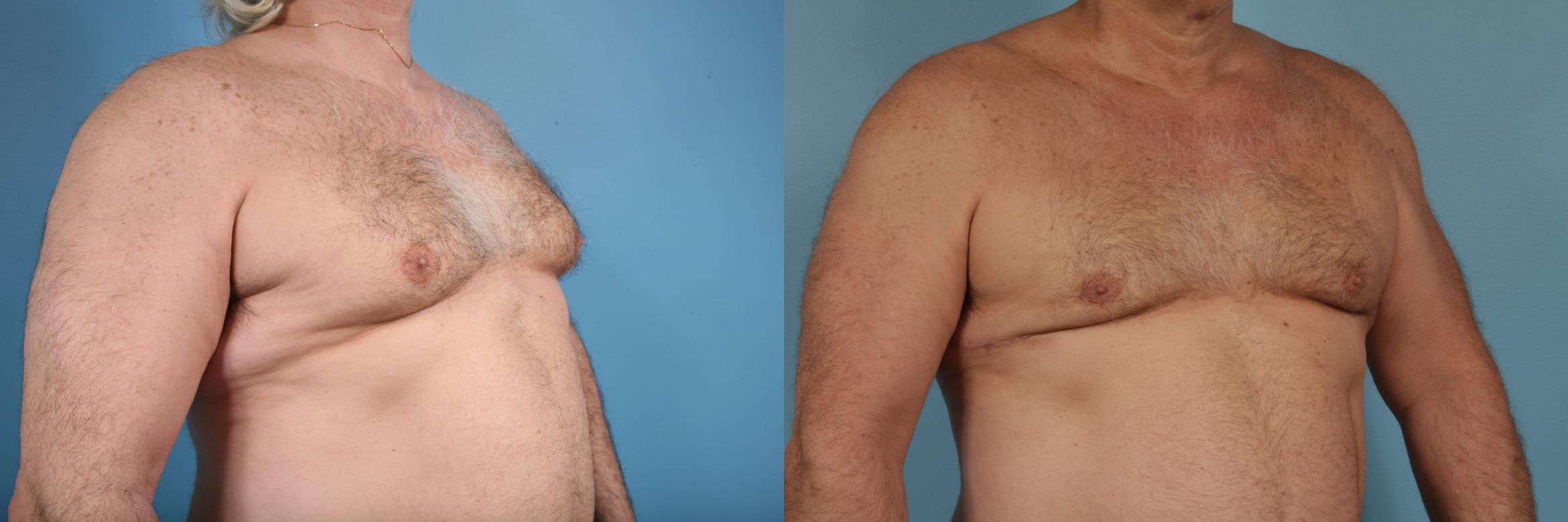 Male Breast Reduction (Gynecomastia) Case 174 Before & After View #3 | Chicago, IL | TLKM Plastic Surgery