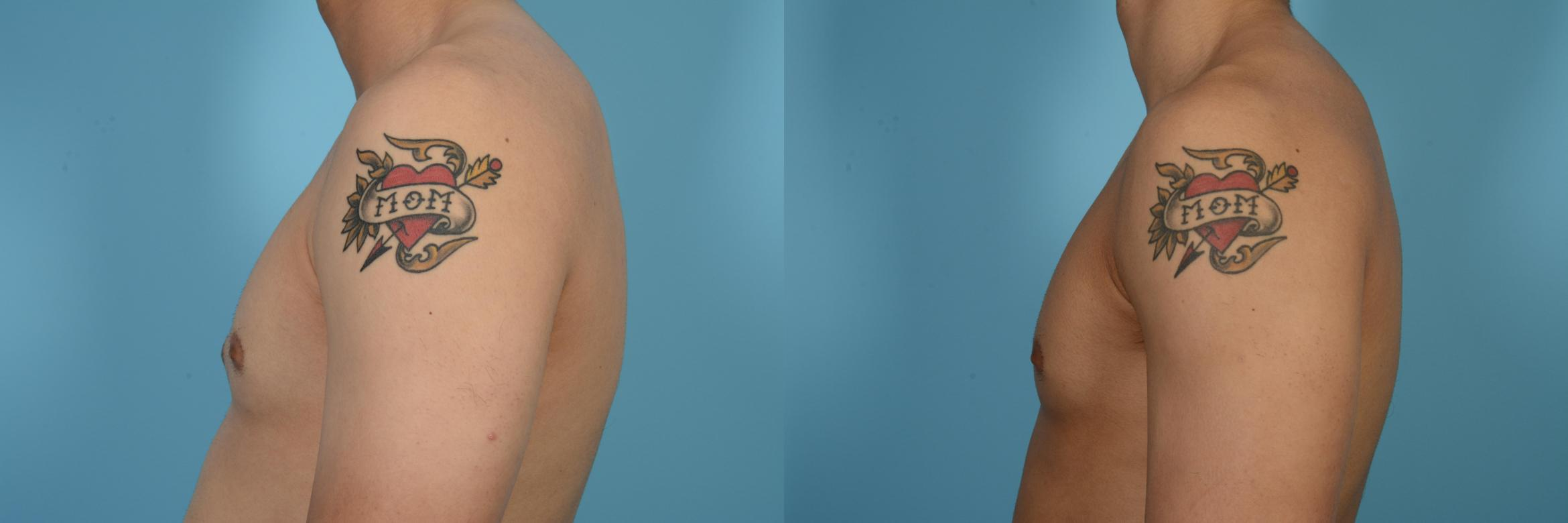 Male Breast Reduction (Gynecomastia) Case 517 Before & After View #1 | Chicago, IL | TLKM Plastic Surgery
