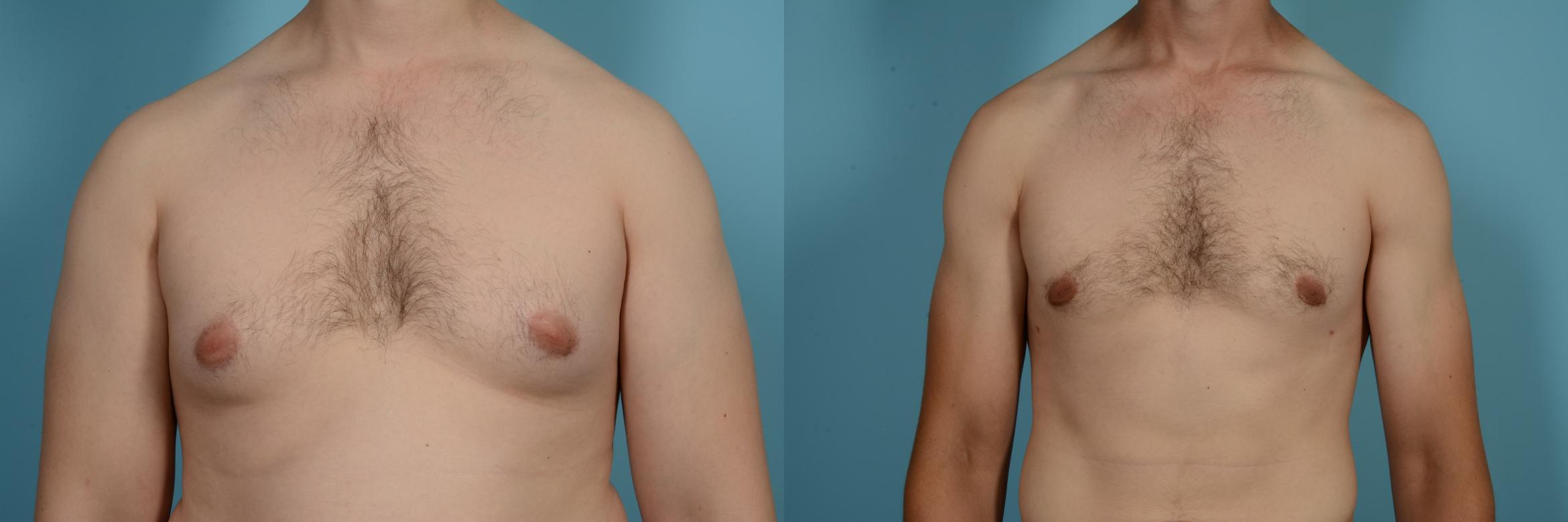 Male Breast Reduction (Gynecomastia) Case 630 Before & After Front | Chicago, IL | TLKM Plastic Surgery