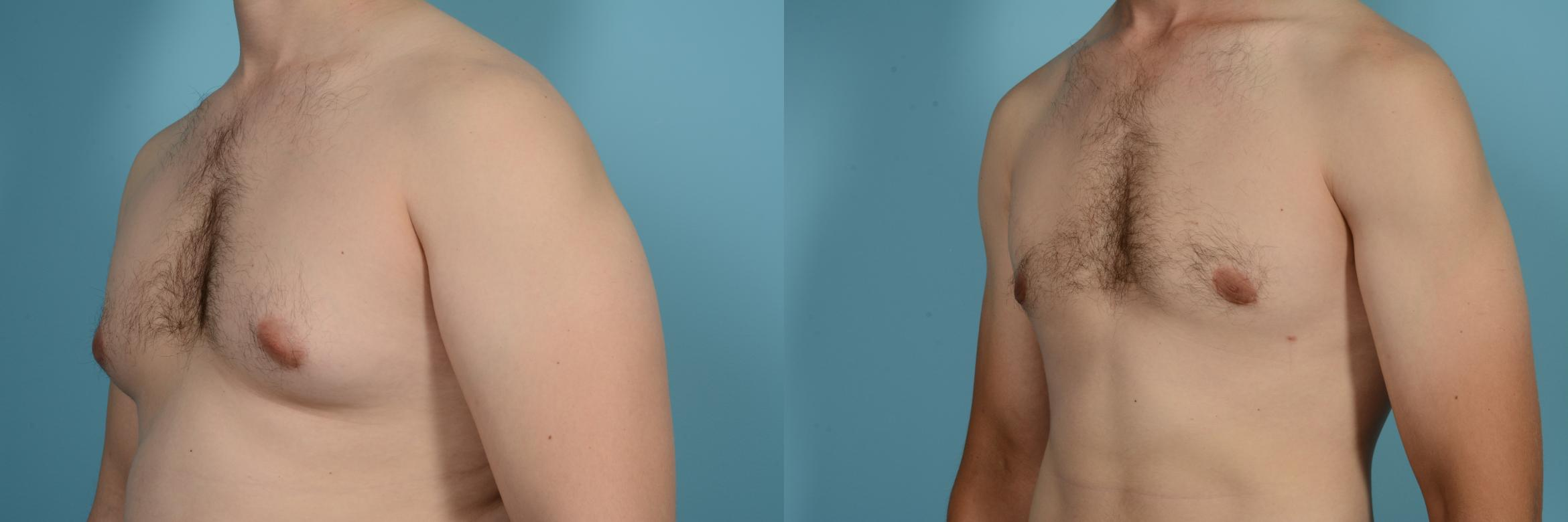 Male Breast Reduction (Gynecomastia) Case 630 Before & After Left Oblique | Chicago, IL | TLKM Plastic Surgery