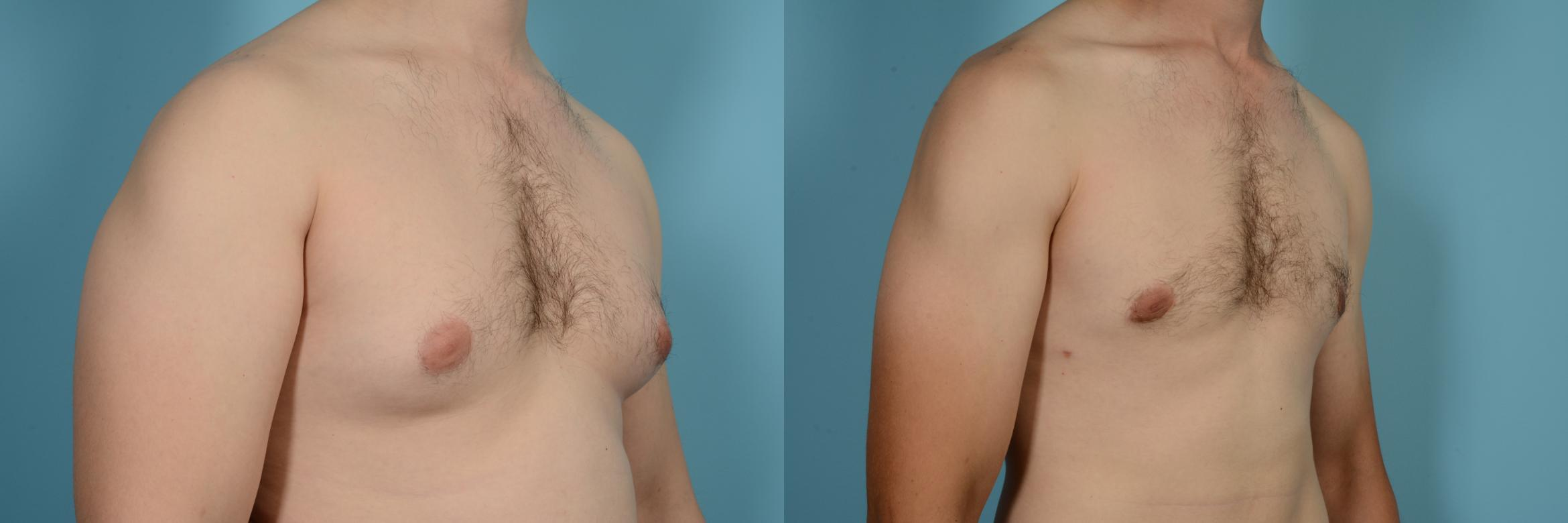 Male Breast Reduction (Gynecomastia) Case 630 Before & After Right Oblique | Chicago, IL | TLKM Plastic Surgery
