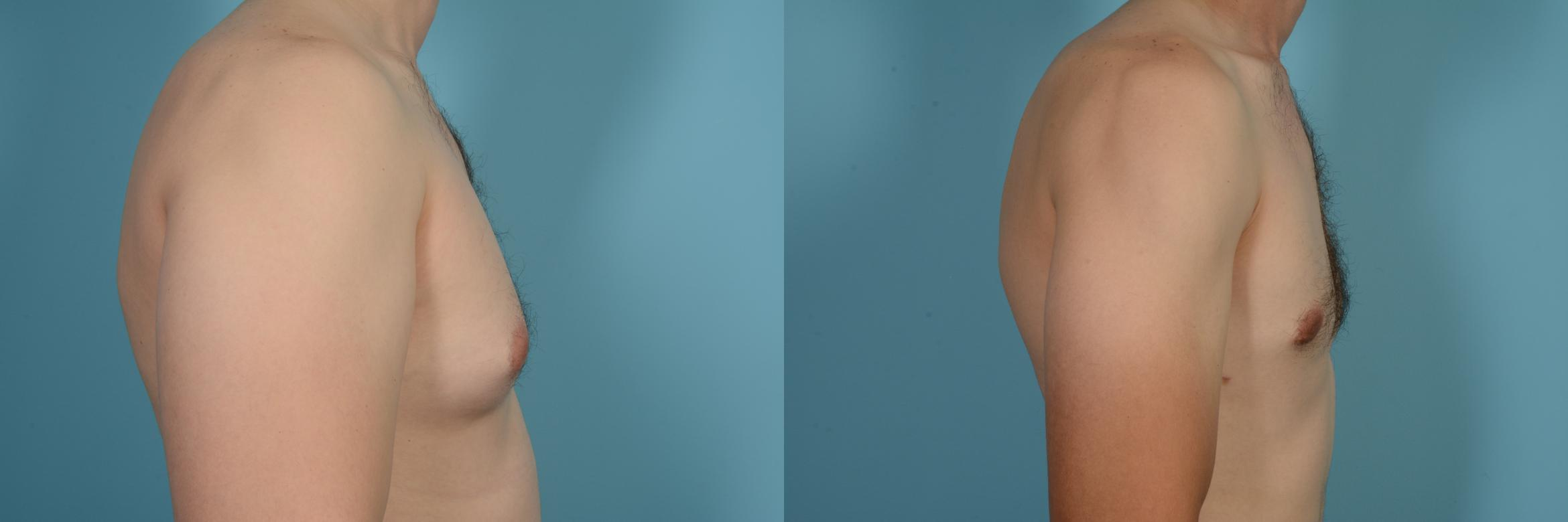 Male Breast Reduction (Gynecomastia) Case 630 Before & After Right Side | Chicago, IL | TLKM Plastic Surgery